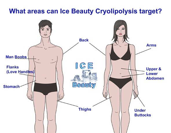 CRYOLIPOLYSIS 3