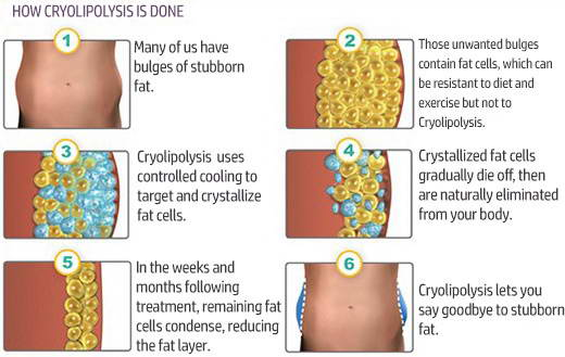 CRYOLIPOLYSIS 6