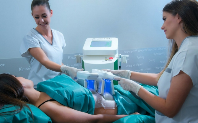 CRYOLIPOLYSIS 2