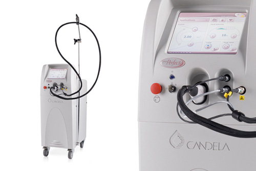 LASER V-Beam 595nm, Perfecta®, Candela