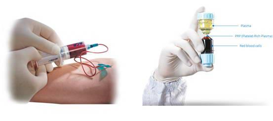Συσκευή αυτόλογης μεσοθεραπείας PRP, Lab. Newmed Pharmaceuticals και PRP Performance Centrifuge, Genesis CS, EmCyte Corporation 6