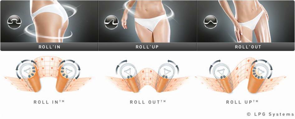Συσκευή λεμφικής ενδερμολογίας Lipomassage™, Cellu M6 Keymodule, Endermologie®, LPG 4
