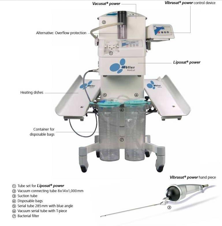 Συσκευή λιποαναρρόφησης, Möller  Medical Ltd 3