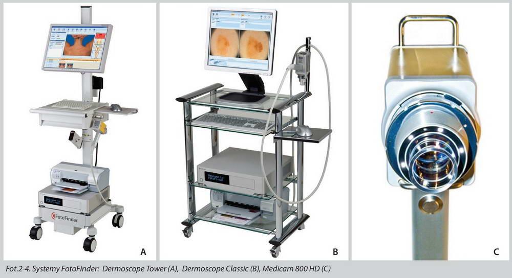 Συσκευή ψηφιακής φωτογράφησης και υπολογιστικής ανάλυσης σπίλων και τριχών, Fotofinder Dermoscope II και Trichoscale 1