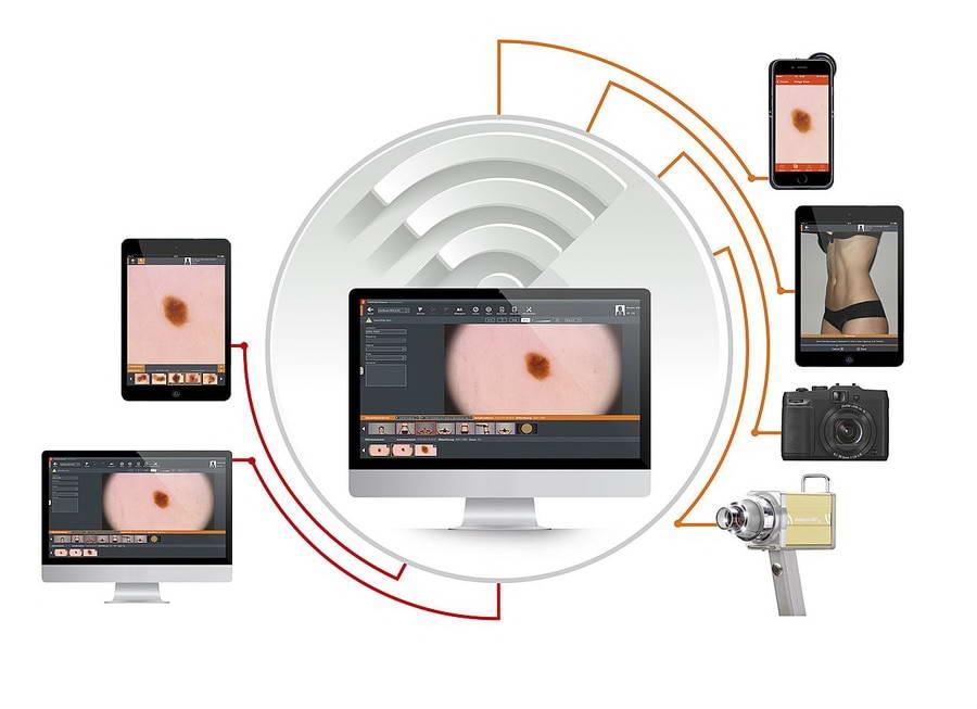 Συσκευή ψηφιακής φωτογράφησης και υπολογιστικής ανάλυσης σπίλων και τριχών, Fotofinder Dermoscope II και Trichoscale 2