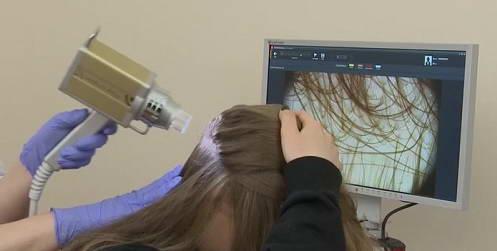 Συσκευή ψηφιακής φωτογράφησης και υπολογιστικής ανάλυσης σπίλων και τριχών, Fotofinder Dermoscope II και Trichoscale 6