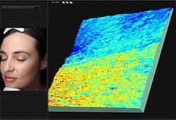 Συσκευή ψηφιακής φωτογράφησης και υπολογιστικής ανάλυσης δέρματος, Visia® 5